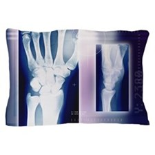 Wrist bones, X-ray Pillow Case