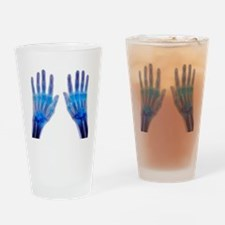 'Rheumatoid arthritis of the hands, Drinking Glass