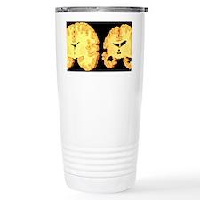 Alzheimer's disease, ar Travel Mug