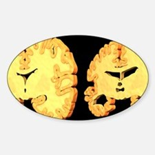 Alzheimer's disease, artwork Sticker (Oval)