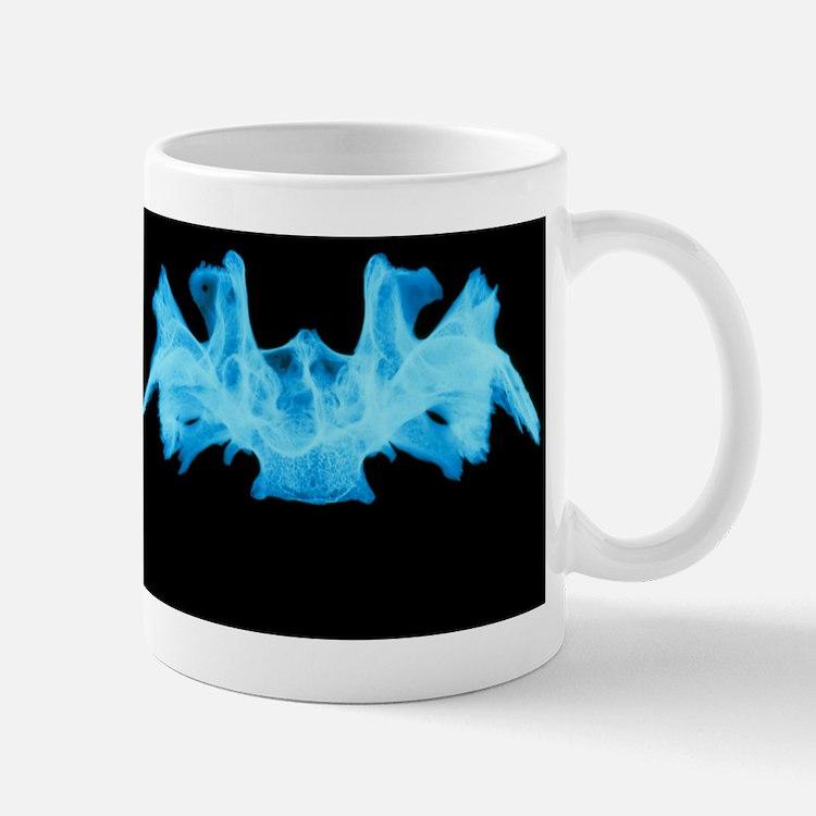 X-ray image of a human sphenoid bone Mug