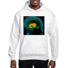 Cingulate gyrus in the brain, ar Hoodie