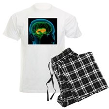Cingulate gyrus in the brain, Pajamas