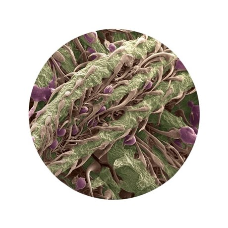 "Cannabis plant, SEM 3.5"" Button"
