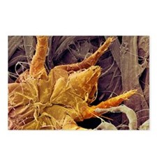 Dust mite, SEM Postcards (Package of 8)