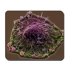 Colon cancer cell, SEM Mousepad