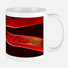 Narrowed artery, artwork Mug