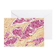 Leukemia blood cells, light microgra Greeting Card