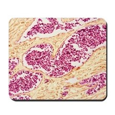Leukemia blood cells, light micrograph Mousepad