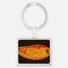 Light micrograph of liver fluke Landscape Keychain