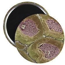 Myelinated nerves, SEM Magnet