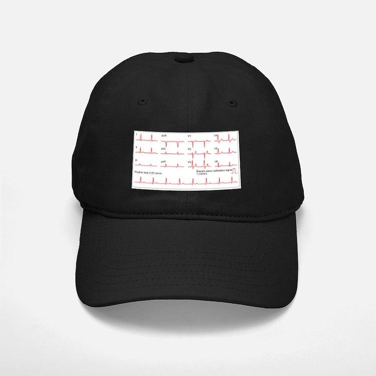 ECGs of a normal heart rate, artwork Baseball Hat