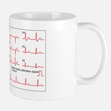 ECGs of a normal heart rate, artwork Mug