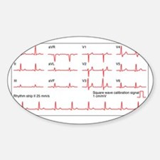 ECGs of a normal heart rate, artwor Sticker (Oval)