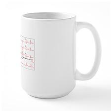 ECGs of a normal heart rate, artwork Mug