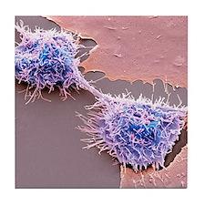 Dividing HeLa cells, SEM Tile Coaster
