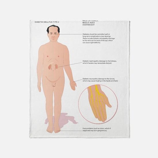 Diabetes complications, artwork Throw Blanket