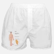Diabetes complications, artwork Boxer Shorts