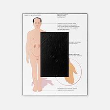 Diabetes complications, artwork Picture Frame