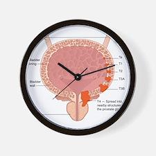 Bladder cancer stages, artwork Wall Clock