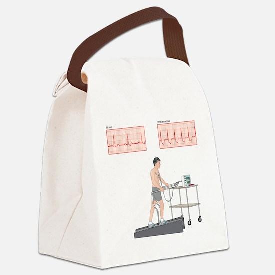 Cardiac stress test, artwork Canvas Lunch Bag