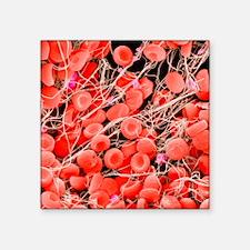 """Blood clot, SEM Square Sticker 3"""" x 3"""""""