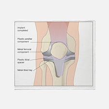 Knee replacement, artwork Throw Blanket