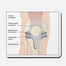 Knee replacement, artwork Mousepad