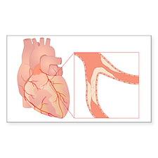 Narrowed coronary artery, artw Decal