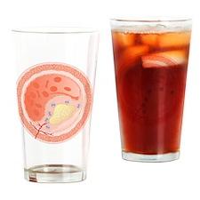 Narrowed blood vessel, artwork Drinking Glass