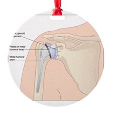 Shoulder replacement, artwork Ornament