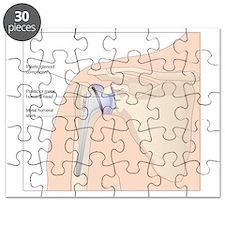 Shoulder replacement, artwork Puzzle