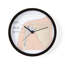 Shoulder replacement, artwork Wall Clock