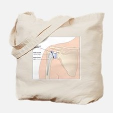 Shoulder replacement, artwork Tote Bag