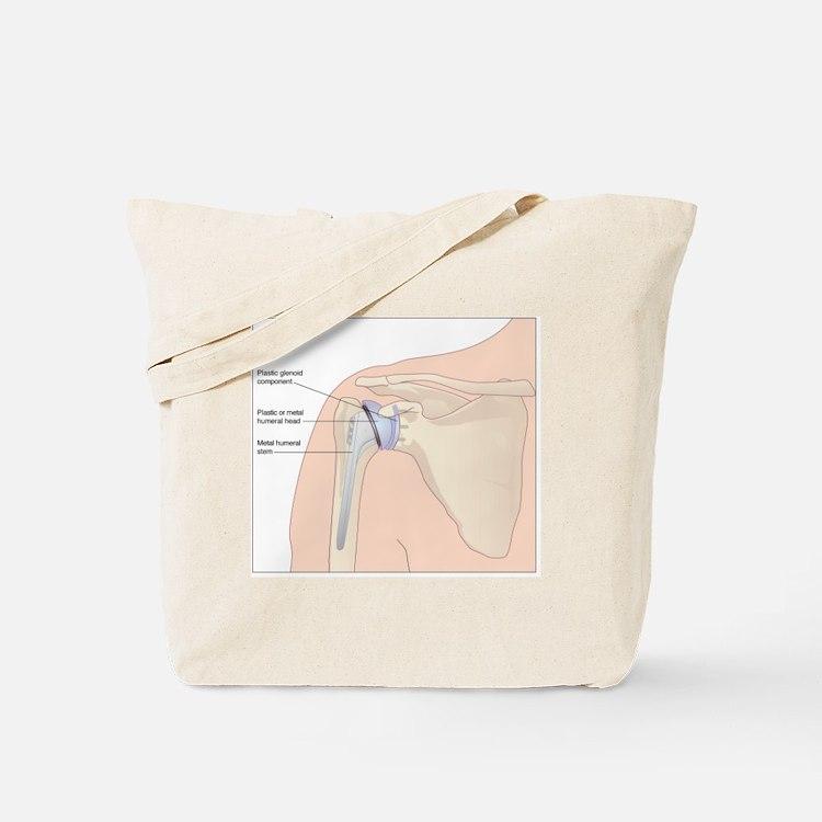 Shoulder replacement, artwork Tote Bag