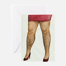 Monique Hairy Legs Greeting Card
