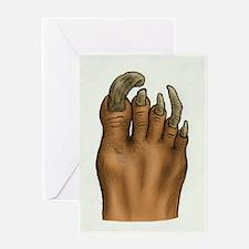 Pedicure Emergency Greeting Card