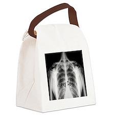 xray tech 9 Canvas Lunch Bag