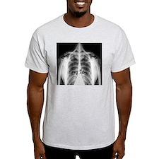 xray tech 9 T-Shirt