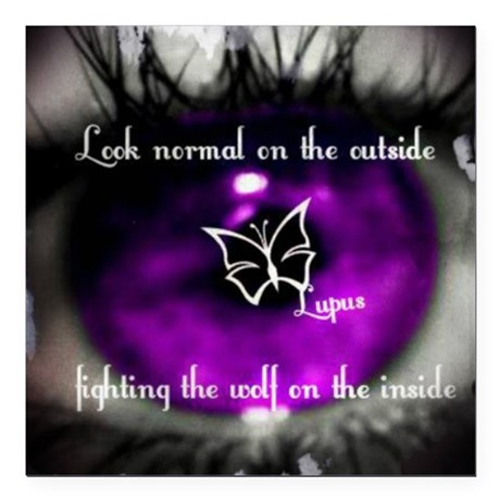 """Through the eye of lupus Square Car Magnet 3"""" x 3"""""""