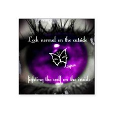 "lupus eye Square Sticker 3"" x 3"""