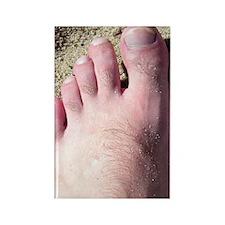 Hairy Feet Rectangle Magnet