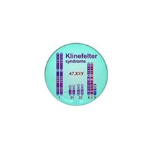KS Mini Button (100 pack)