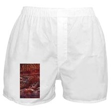 Snakeskin Print Boxer Shorts