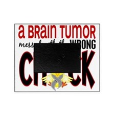 - Brain Tumor Messed With Wrong Chic Picture Frame
