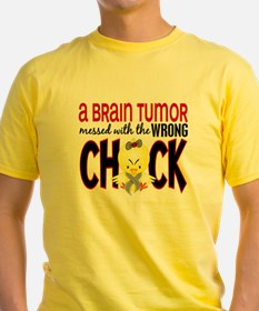 - Brain Tumor Messed With Wrong Chi T