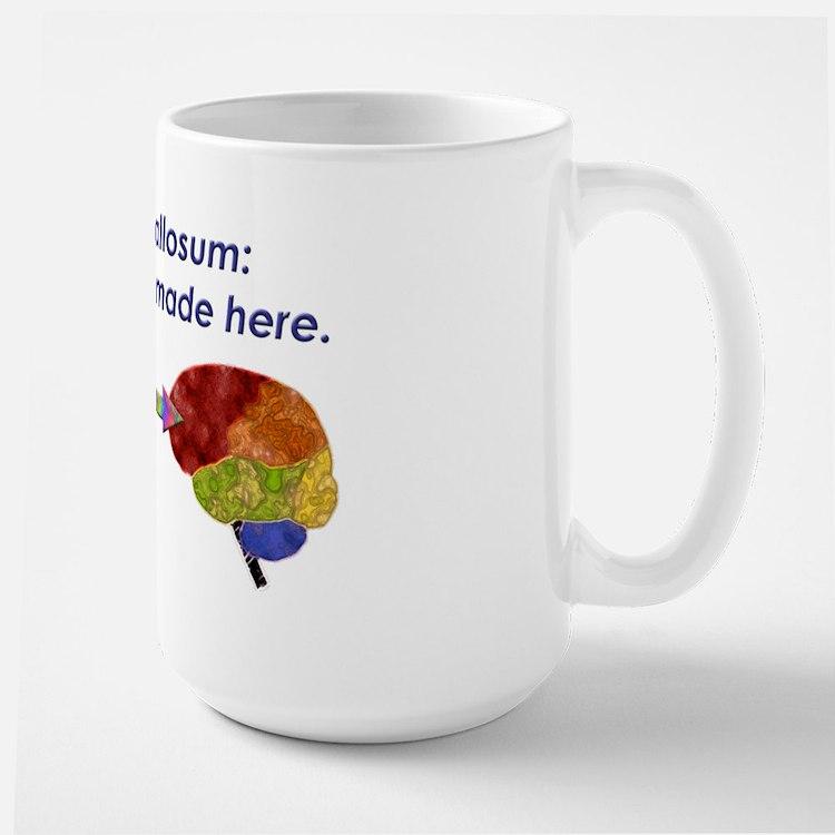 Corpus Callosum Mugs