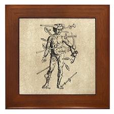 Wound Man Framed Tile
