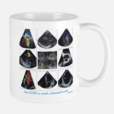 One echo Mugs