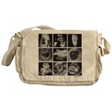 Fetal images ultrasound Messenger Bag